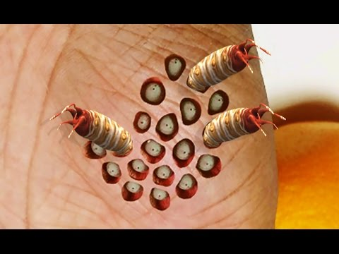 Trypophobia vs Vermiphobia; Worms, Lotus Pod Cysts, Holes, Plucking and Popping