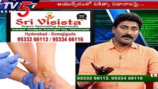 Varicose Veins Treatments | Sri Visista Hospitals | Health File