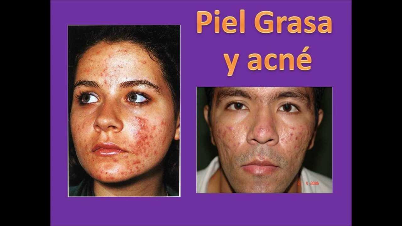 Simple la máscara de la sequedad de la piel sobre la persona