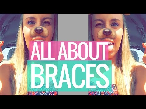 All About Braces and Retainers (Before, During, & After)
