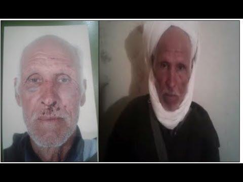 ستيني ضحية اعتداء شنيع بجماعة سبت النابور ضواحي سيدي إفني يُطالب بإنصافه
