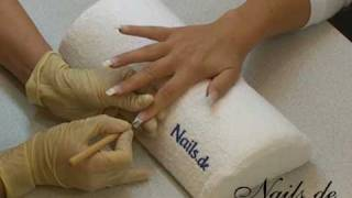symptome nagelpilz canesten