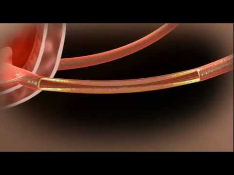 Video Demo Of The Allium Ureteral Stent  Urs
