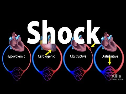 Shock, Pathology of Different Types, Animation