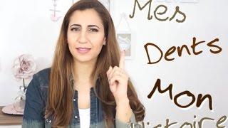 "Comment Je Blanchis Mes DENTS ""Mon histoire "" .... / قصتي مع اسناني"