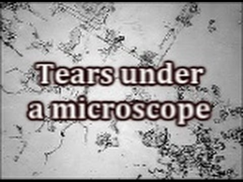 Download Tears under a microscope Mp4 baru