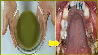 Trị dứt điểm sâu răng, đau răng, ê buốt răng tại nhà đơn giản (Deep tooth treatment)
