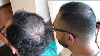 Regrow Thinning Hair! 5 Minutes | How to Cut and Fade Balding Hair | Tip #19