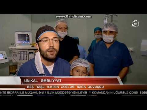 Unikal göz emeliyyatı ATV Xeber 21.00