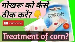 गोखरू का ईलाज😯Foot corn removal at home in hindi, Corn caps hindi, Corn treatment in ayurveda,corn