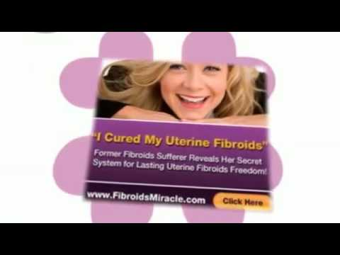 Does Fibroids Miracle Work | Is Fibroids Miracle Worth The Money?