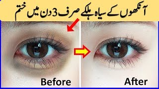 How To Remove Dark Circles Overnight & Powerful Remedy for Remove Dark Circles In 3 Days