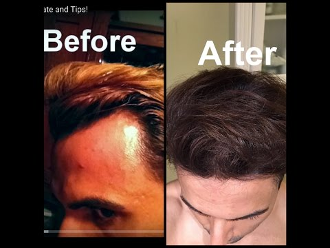 Grow Hair on Receding Hairline Naturally! (dermaroller and essential oil)