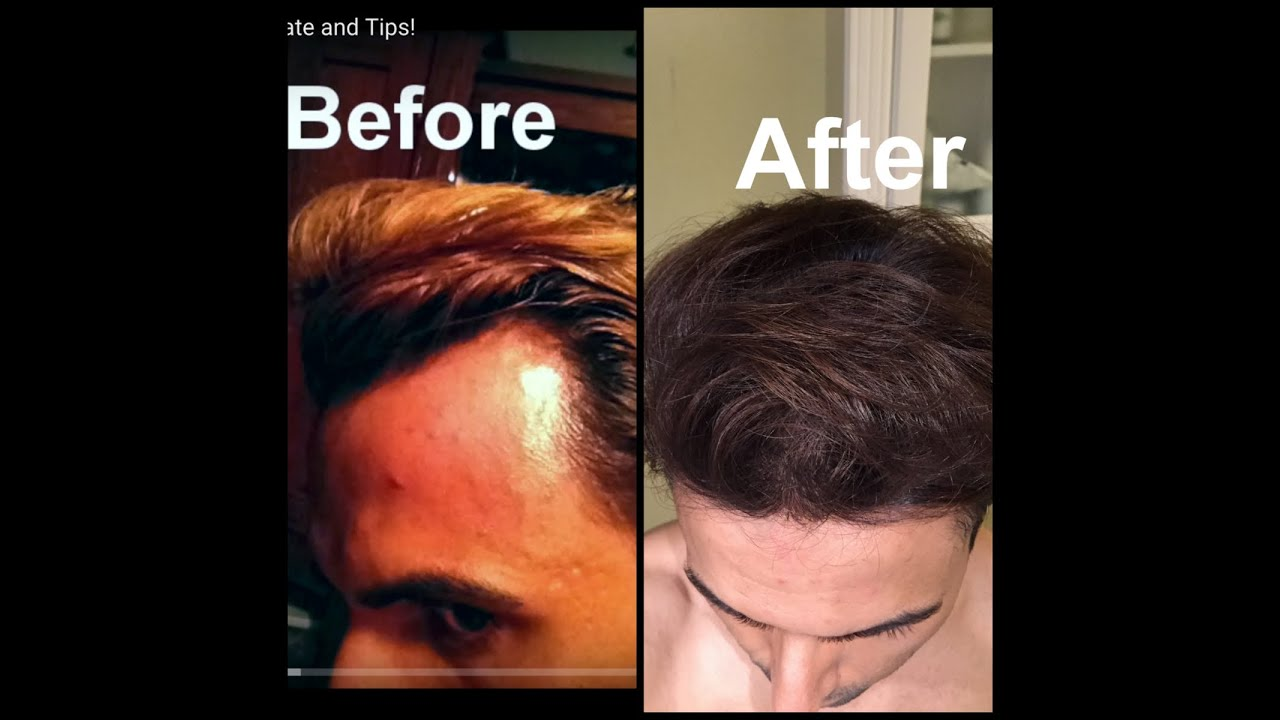 how to repair a receding hairline