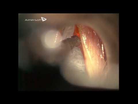 0 - Параліч голосових зв'язок та гортані. Поліпи і вузлики на голосових зв'язках і гортані