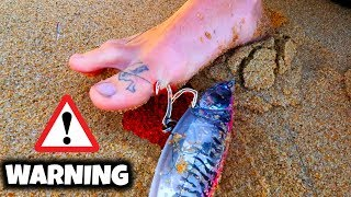 He Got A Fishing Hook THROUGH His Foot!! (Removal & Rare Catch)