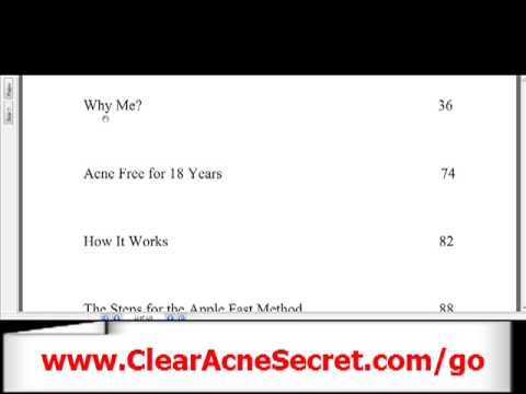 Best Acne Treatment - How To Get Rid of Acne With Acne Free in 3 Days?