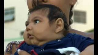 Concern Zika causes baby eye problems