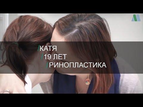 Ринопластика (пластика носа). История Екатерины