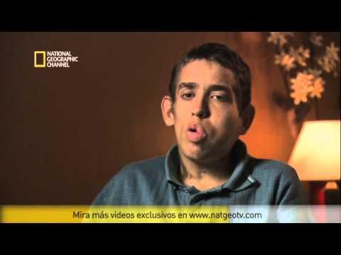 Murió Christian Fritz, el único argentino con la enfermedad del hombre elefante
