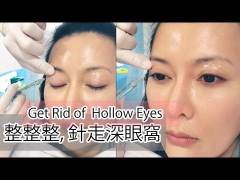 ♛[QQ又整容]我要打腫佢!♥Fixing Hollow Eyes