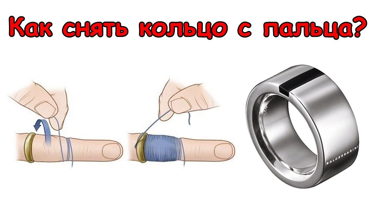 Как снять кольцо с опухшего пальца в  221