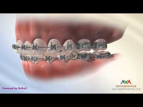How to wear Crossbite Rubber Bands - Orthodontic Instruction