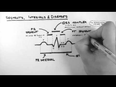 ECG 3 - Segments, Intervals & Diseases