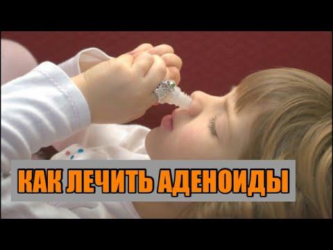 Аденоиды в носу у детей: степени, симптомы