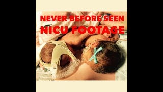 A NICU VISIT AND NEVER BEFORE SEEN NICU FOOTAGE