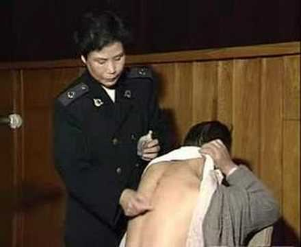 Mechanisms of guasha therapy by zhang xiuqin