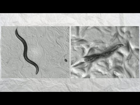 Chromosome 4 - How a worm is unlocking the secrets of ageing