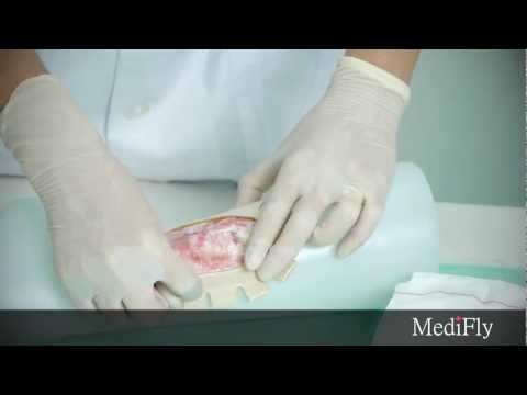 MediFly - How to Dress a Wound (wound care)