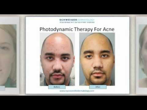 Laser Acne Scar Removal from SCHWEIGER DERMATOLOGY