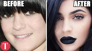 10 Famous People Who Have Admitted To Plastic Surgery