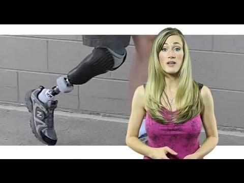 Designing Successful Prosthetic Legs