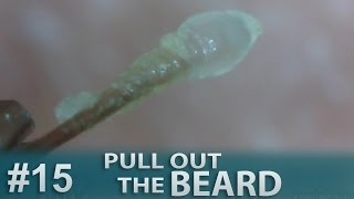#15 Pull Out Beard, Blackhead and Hair Root(Root Sheath) Close up