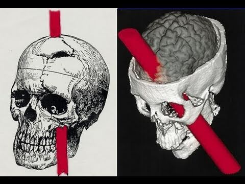 Brain Mind Lecture 3 Frontal Lobes: Lobotomy Catatonia Mania