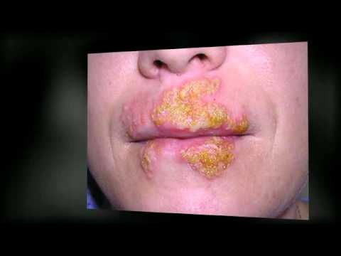 remedies for cold sores in mouth caused by stress