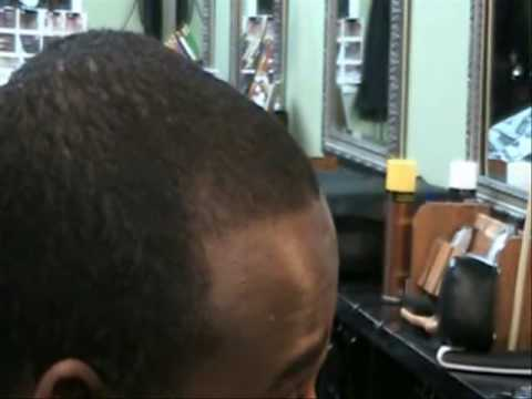 How To Fix A Lightly Receding Hairline Without Dyes YouTube