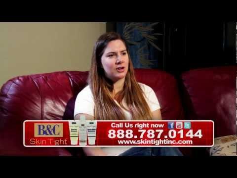 Skin Tight Razor Bump & Acne Ointment/Product