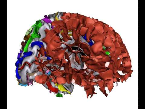 Anatomist : interactive 3D visualization of neuroimaging data