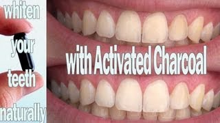 DIY Solutions ♥ Whiten Your Teeth With Activated Charcoal