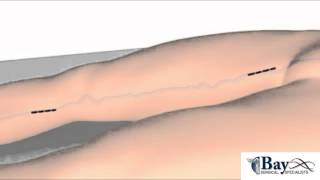 Ligation and Stripping of Varicose Veins Surgery