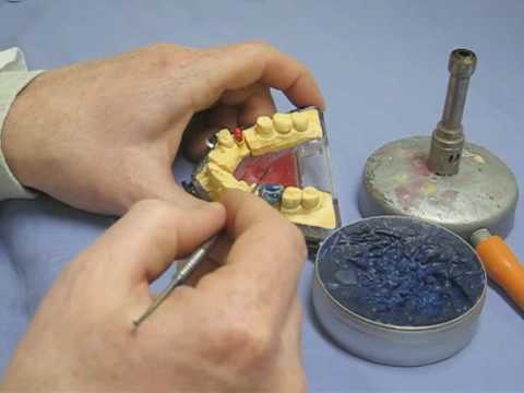 Restoring a tooth (Gold Crown) - Part 1