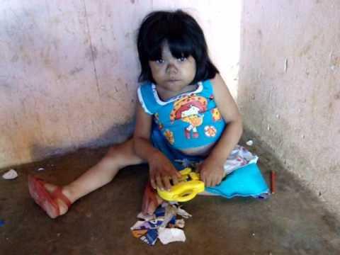 Veja o caso da Mulher Bêbê de 27 anos em Santa Cruz - Itapajé