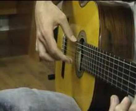 1Flamenco guitarist and focal hand dystonia. Distonía focal