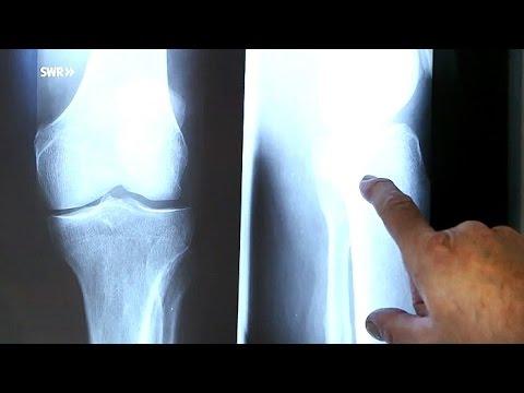 Arthrose: Neue Behandlungsmethoden