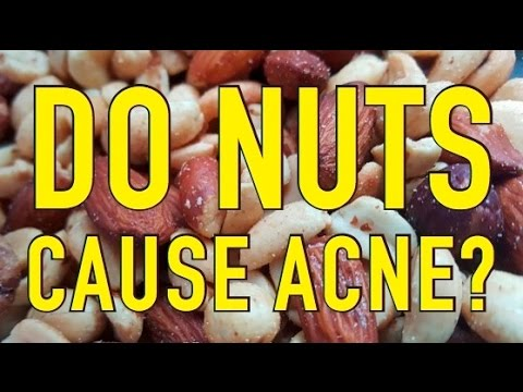Do Nuts Cause Acne?