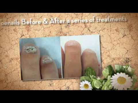 Laser Nail Fungus Treatment Victoria BC - Nail Fungus Remedy